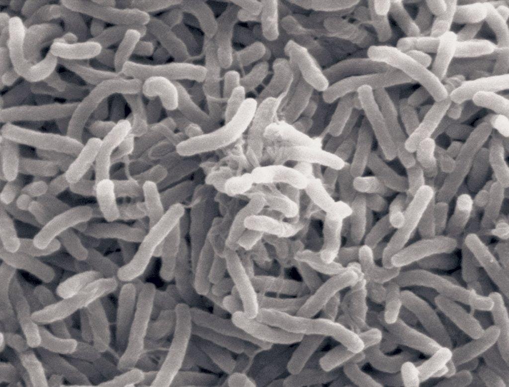 Pyyhkäisyelekromikroskoopin kuva Vibrio cholerae-bakteerista. Vibrio cholerae-bakteerit ovat yleisiä suolaisissa ja makeissa vesissä,Se lisääntyy nopeasti lämpimässä. Kolera leviää  saastuneen juomaveden tai saastuneella vedellä huuhdelluiden elintarvikkeiden välityksellä. Bakteeri tuottaa myrkkyä, koleratoksiinia, jolloin kudoksista poistuu suoleen runsaasti vettä. Se aiheuttaa voimakkaan vesiripulin. Ilman hoitoa potilas kuolee nestehukkaan. Kuva: Ronald Taylor, Tom Kirn, Louisa Howard